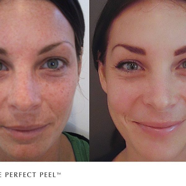 The Perfect Peel treatment for pigmentation