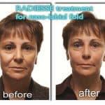 Results of Radiesse dermal filler for nasolabial folds