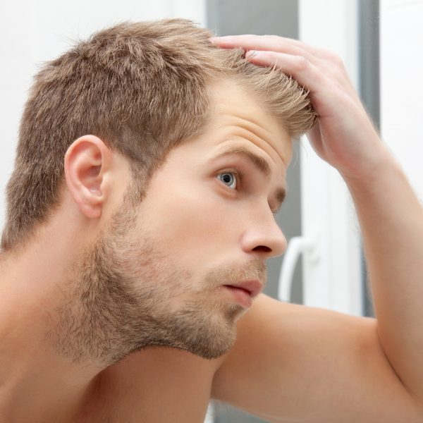 young man with early stages of hair loss