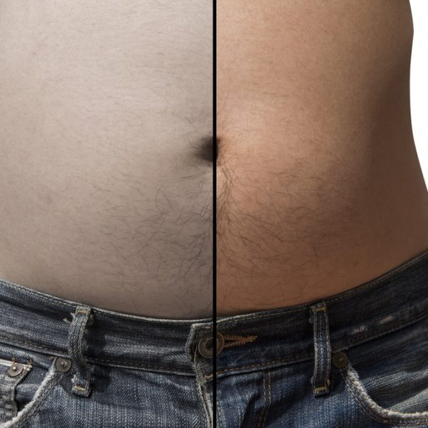 Man shows the before and after results of fat freezing treatment