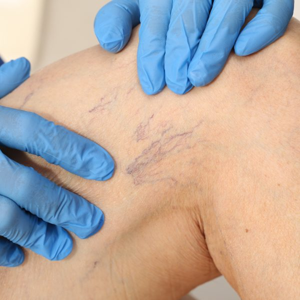 Microsclerotherapy for Spider or Thread Veins