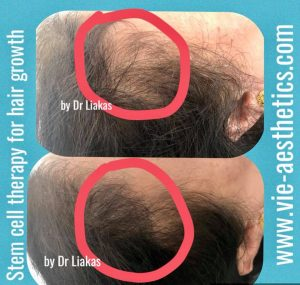 woman with female pattern baldness showing thicker hair after VieStem Hair with Regenera Activa treatment