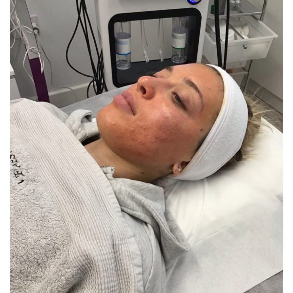 Anna during her Perfect Peel treatment at Vie Aesthetics