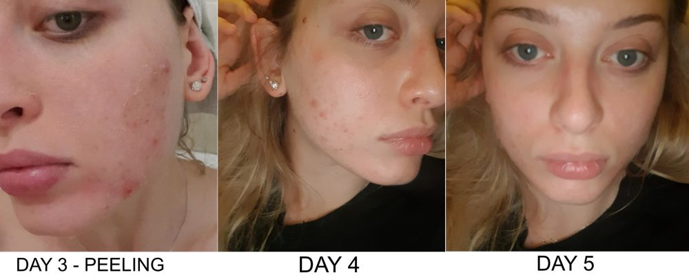 Skin peeling after Perfect Peel treatment during days 3 to 5