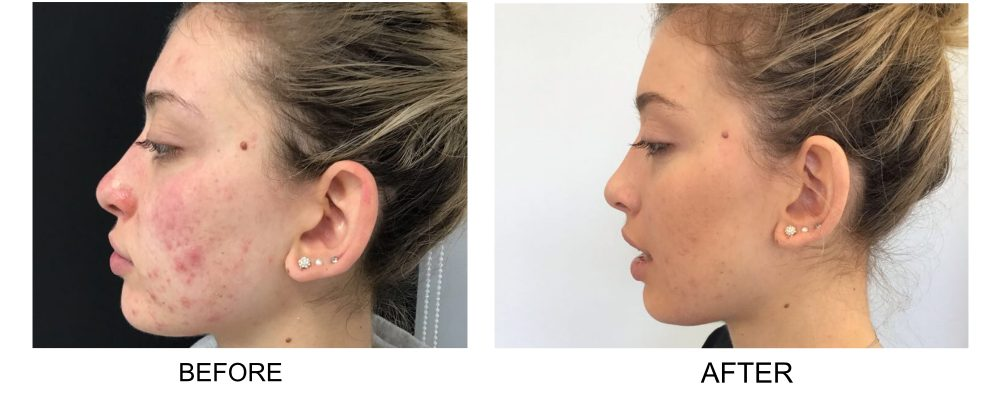 Anna's before and after photos following perfect peel treatment for acne