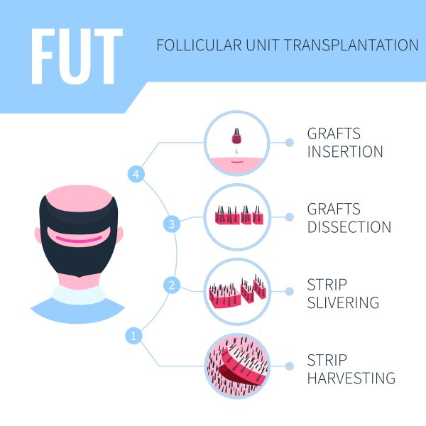 hair transplant diagram