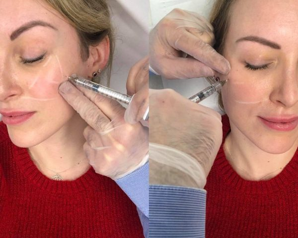 a woman has the Texas Jaw filler treatment