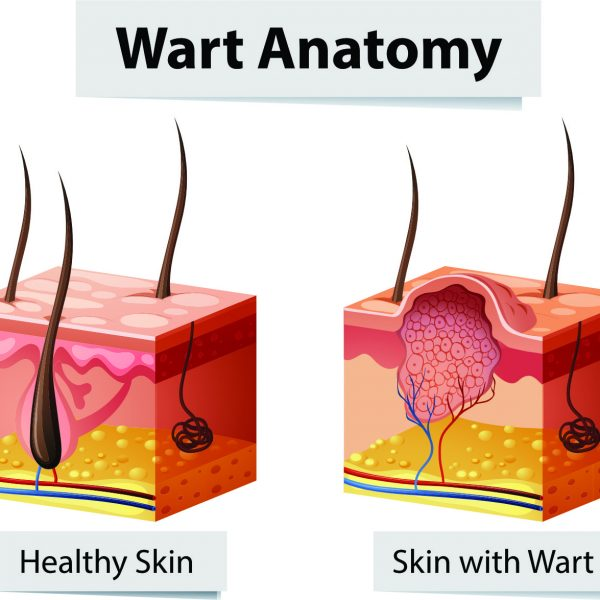 diagram showing the skin anatomy of a wart versus healthy skin