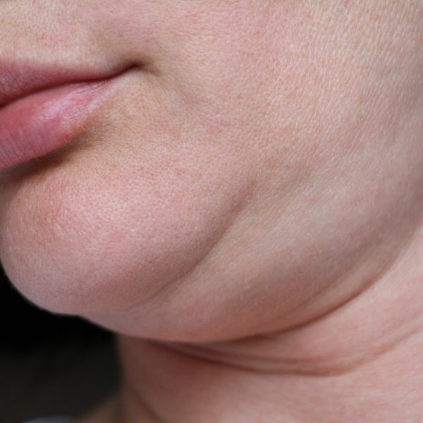 woman with a double chin considers a non-surgical fat reduction procedure