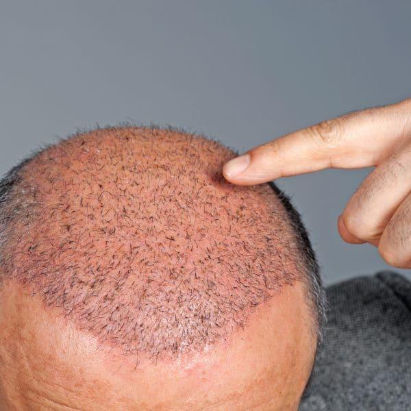 hair transplant after procedure