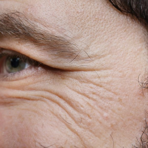 Crow's feet on a man caused by ageing or lifestyle