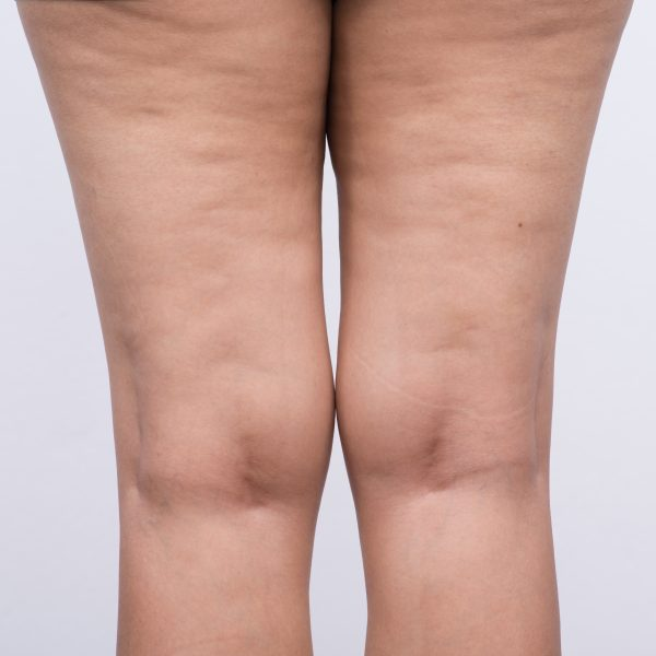 woman with cellulite on her legs