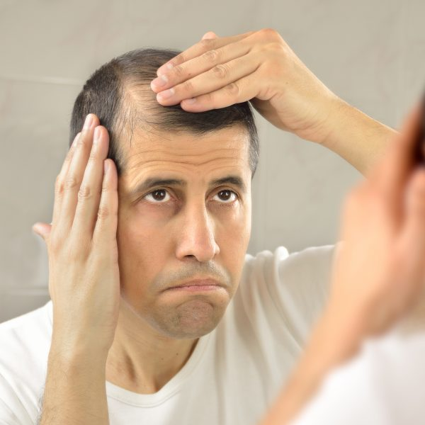 man considering non-surgical treatments for hair loss