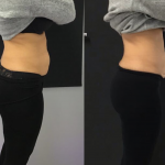 Woman after HIFU treatment for abdomen