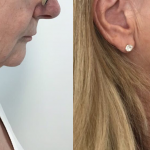 HIFU and Endopeel combination treatment for neck and jowls