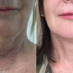 Results of HIFU and Endopeel combination treatment for neck and jowls