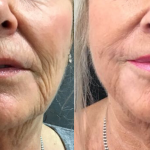 Middle-aged woman shows results of HIFU and Ellanse combination treatment for neck and lower face