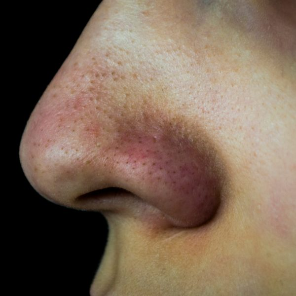 Person suffering from blocked pores and blackheads on their nose