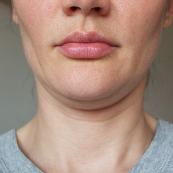 a sporty woman suffering from loss of facial volume caused by gym face