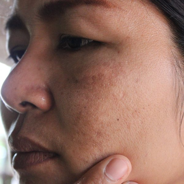 woman with dull skin problems on her face