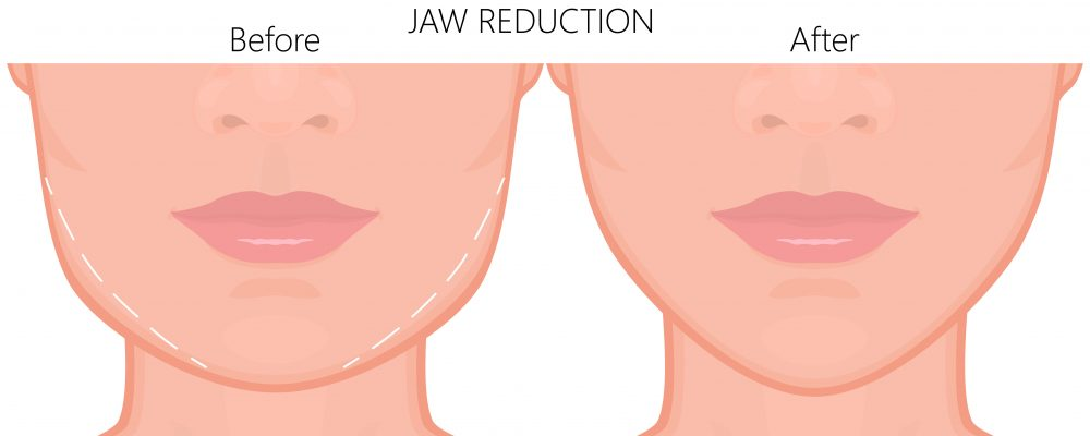 diagram showing non-surgical jaw reshaping and jawline reduction