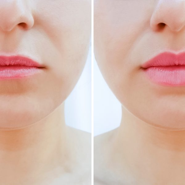 woman with thin lips has lip filler treatment to add volume