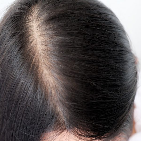 woman with wide part caused by hair loss