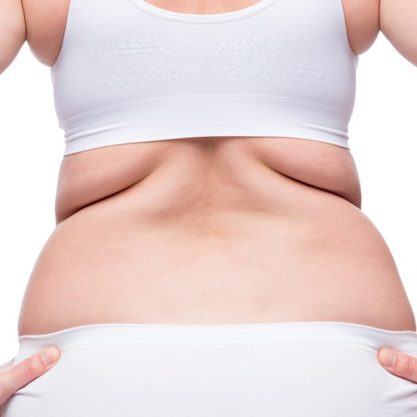 woman with pockets of fat on her back considers non-surgical body toning procedure