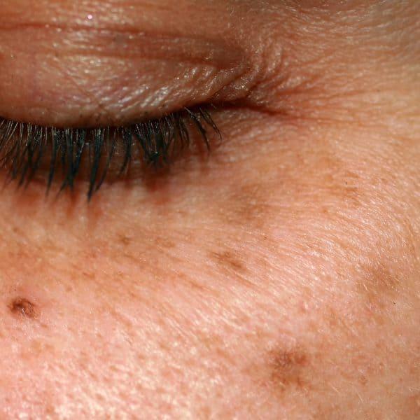 Pigmentation, Hyperpigmentation, Melasma & Age Spots