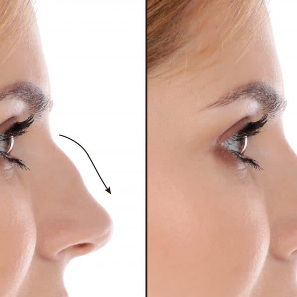 Nose (Bumpy, Uneven)