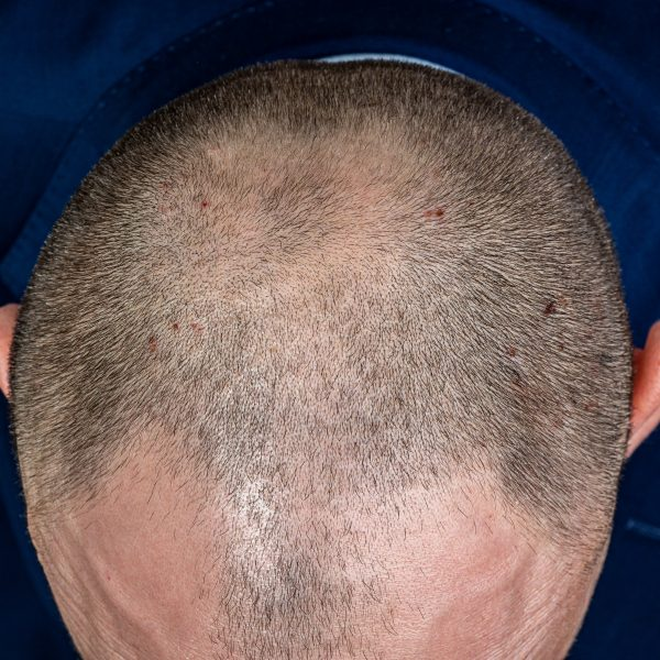 Hair Loss & Pattern Baldness