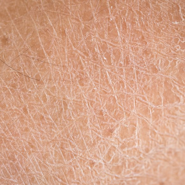 Close-up photo of dry skin