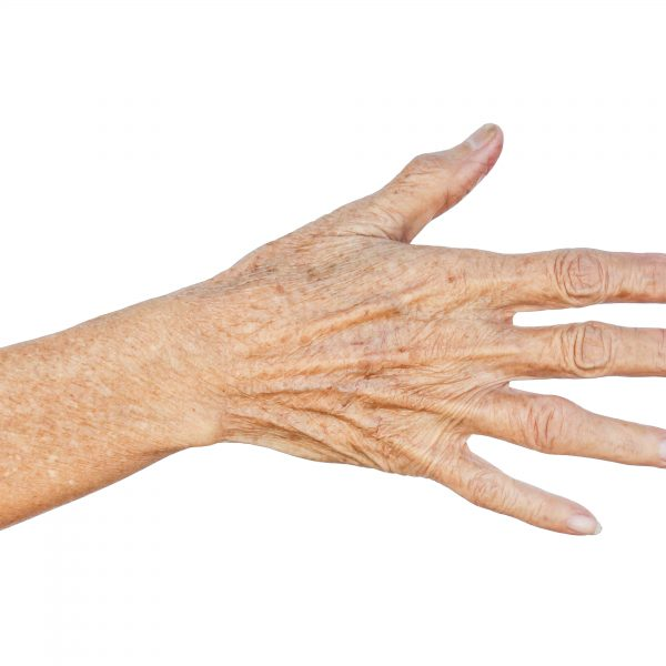 Person is concerned about ageing hands and thin skin