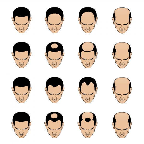 norwood scale for male pattern baldness
