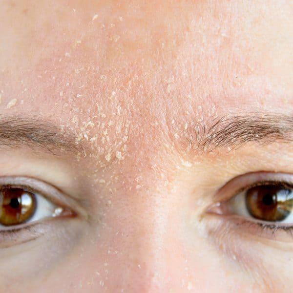 Dry Skin (Face)