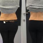 Results of HIFU treatment for toning the abdomen