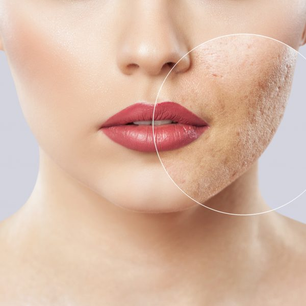 Acne (including Acne Scarring)