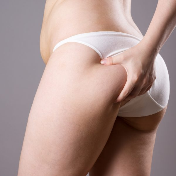 woman with buttocks concerns such as lack of tone or sagging bum