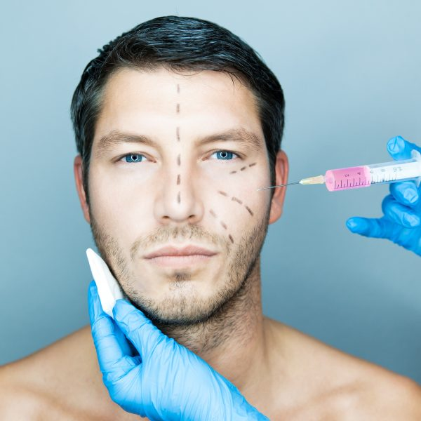 Thirty something male receiving dermal filler and liquid facelift injections