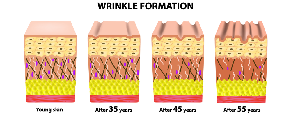 diagram showing wrinkle formation in skin of different ages