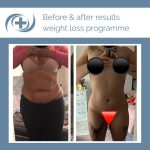 Woman shows weight loss results from the national medical weight loss programme