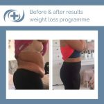 weight loss results of the national medical weight loss programme