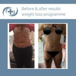Before and After results of the national medical weight loss programme