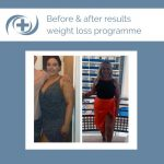Before and After of the national medical weight loss programme