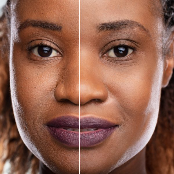 young black woman before/after of anti-ageing skin treatments