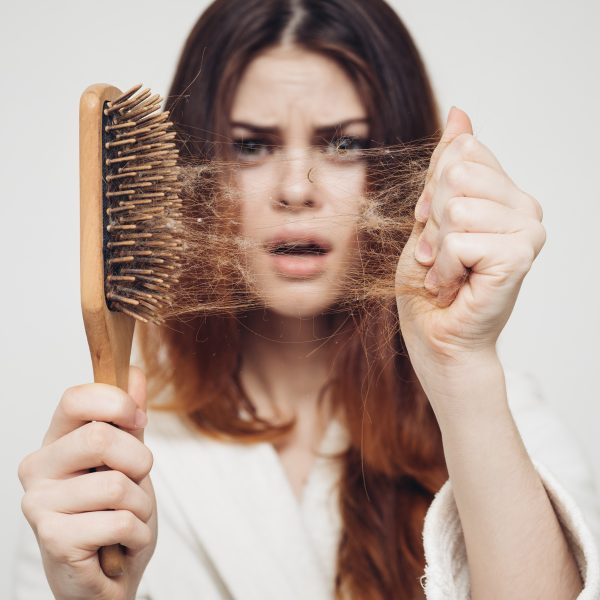 woman suffering from Telogen Effluvium hair loss
