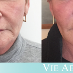 Middle-aged woman shows results of the VIELift non-surgical facelift at Vie Aesthetics