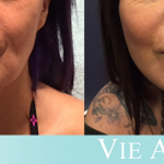 Young woman shows the outcome from a non-surgical VIELift