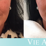 Woman shows the effects of a non-surgical facelift VIELift at Vie Aesthetics