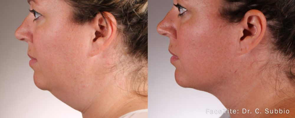 woman showing before and after results on chin and neck with facetite face contouring treatment